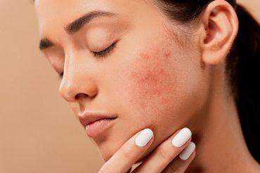 peeling-acne